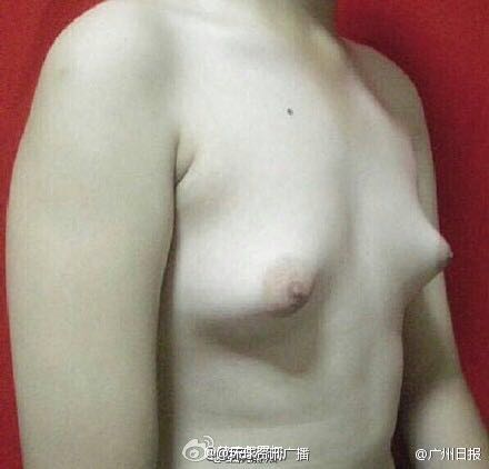 Breast Grow Large Male 10