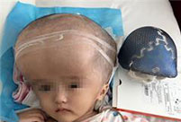 Doctors use 3D-printed skull to save girl