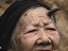 Hundred-year-old woman grows horn in forehead