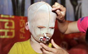 Photo story: Mask girl's hard life