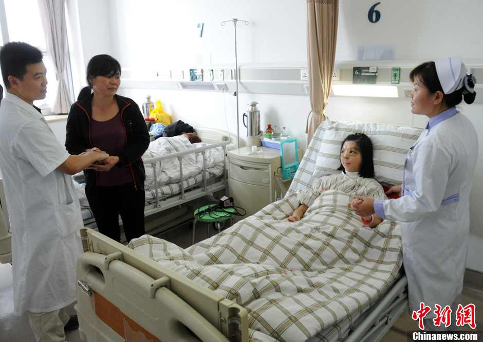 Girl Smiles After Face Transplant In Se China 4 Peoples Daily